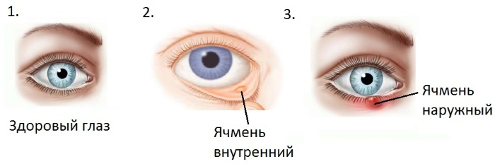 instructions for eye drops