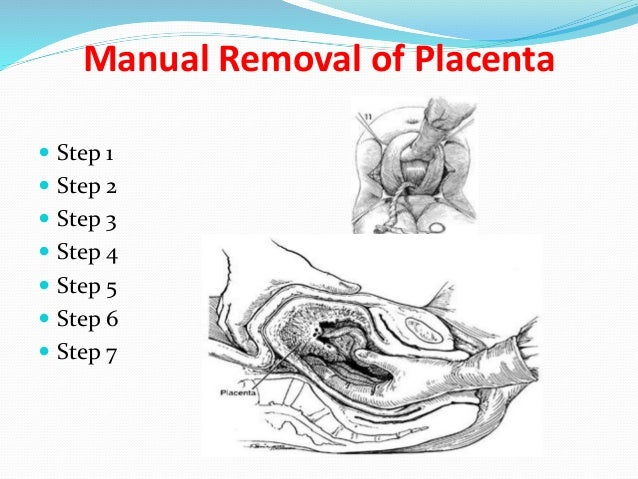 Manual removal of placenta video